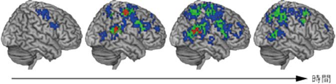 運動主体感に関連する脳活動が時間とともに変化する様子